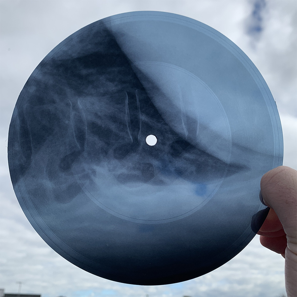 "Image of the X-ray vinyl edition of The Avalanches' ""Reflecting Light"""